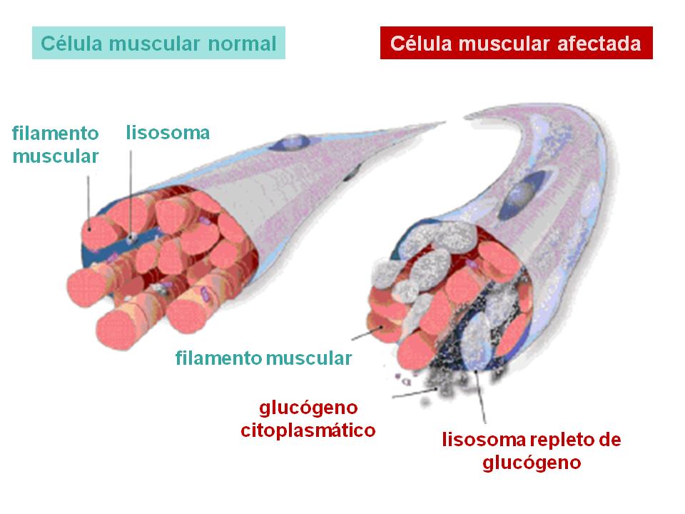 Qué es la enfermedad de Pompe? | Guía Metabólica
