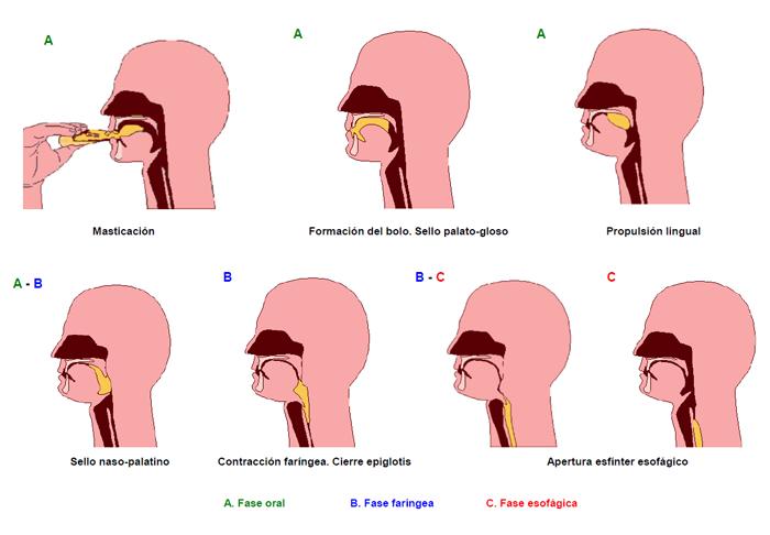 La disfagia y el paciente neurológico | Guía Metabólica