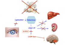 ¿Qué hay que hacer para evitar las consecuencias de una galactosemia?