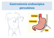 ¿Qué es una gastrostomía endoscópica percutánea?