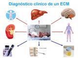 Diagnóstico clínico de un ECM
