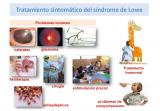 ¿Qué tratamiento se puede realizar en el síndrome de Lowe?