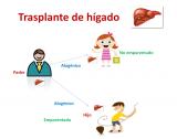 Trasplante de hígado. Imagen: HSJDBCN