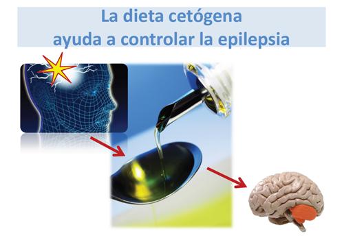 ¿Cómo ayuda la dieta ceto con la epilepsia?