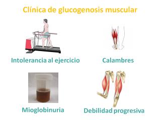 Clínica de las glucogenosis musculares. Imagen: HSJDBCN