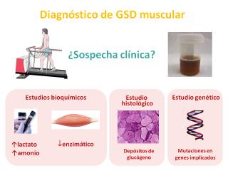Diagnóstico de GSD muscular. Imagen: HSJDBCN