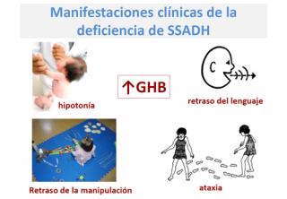 ¿Qué ocurre en el caso de un niño/a que nace con una deficiencia de SSADH?