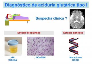 ¿Cómo se diagnostica una aciduria glutárica tipo I?