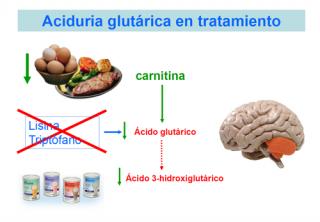 Aciduria glutárica tipo 1 en tratamiento