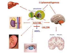 ¿Qué síntomas producen las enfermedades de la biogénesis peroxisomal?
