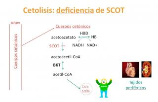 Deficiencia de succinil-CoA transferasa (SCOT)