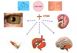 La cistinosis es una enfermedad multisistémica.