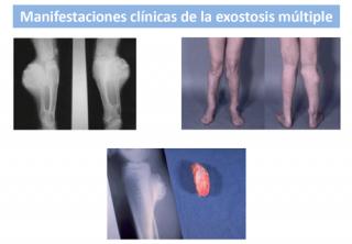 Osteocondromas