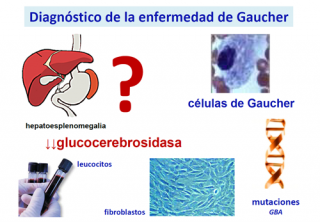 ¿Cómo se diagnostica un paciente con enfermedad de Gaucher?