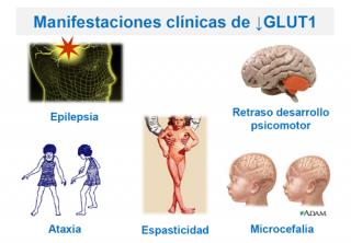 ¿Cuál es la clínica del déficit de GLUT1?