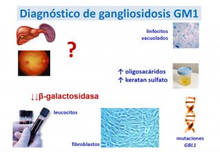 ¿Cómo se diagnostica un paciente con gangliosidosis GM1?