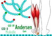 Glucogenosis musculares. Imagen: HSJDBCN