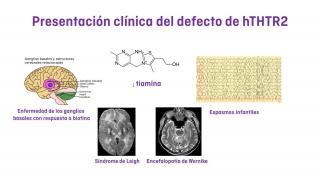 ¿Cómo se presenta clínicamente el defecto del transportador de tiamina?