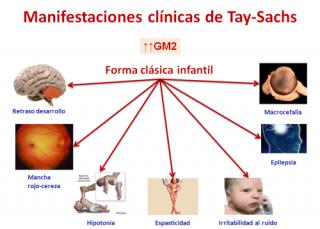 Manifestaciones clínicas de la Enfermedad de Tay Sachs