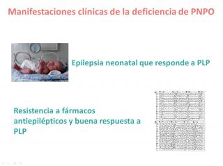 Manifestaciones clínicas de la deficiencia de PNPO. Imagen: HSJDBCN