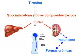 ¿Cómo se manifiesta la tirosinemia tipo 1?
