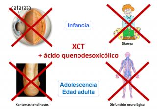 ¿Tiene tratamiento la XCT?
