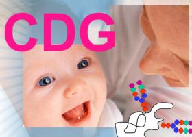 defectos congénitos de la glicosilación. Imagen: HSJDBCN