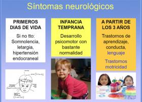 Síntomas neurológicos