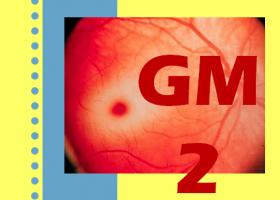 Gangliosidosis GM2. Imagen: HSJDBCN