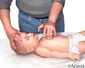Reanimación cardiopulmonar a un bebé. Imagen: ADAM