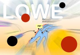 Síndrome de Lowe. Imagen: HSJDBCN