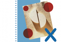 Adrenoleucodistrofia ligada al cromosoma X. Imagen: HSJDBCN