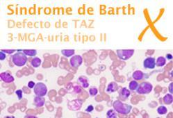 Síndrome de Barth. Imagen: HSJDBCN