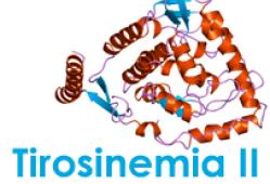 Tirosinemia tipo 2