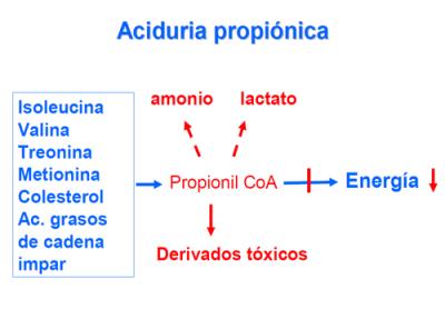 Aciduria propiónica